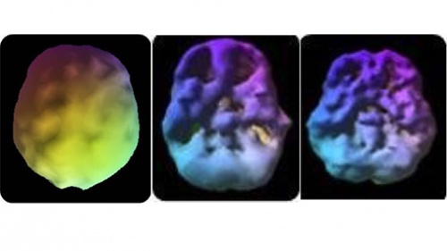 1st: The healthy pre-frontal cortex. 2nd: 18 year old—3 year history of 4 times a week use. Underside view shows decreased pre-frontal cortex and temporal lobe activity. 3rd: 28 year old—10 year use. Underside also shows decreased activity.